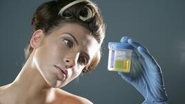 Какво казва цветът на урината за здравето ви