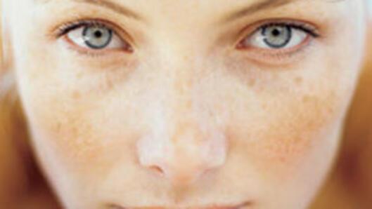 Ефикасни рецепти срещу пигментните петна