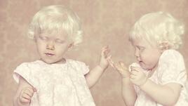 Албиносите също са хора