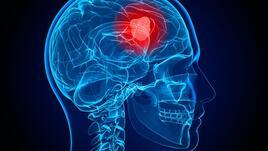 Учени откриха центъра на мозъчното бездействие